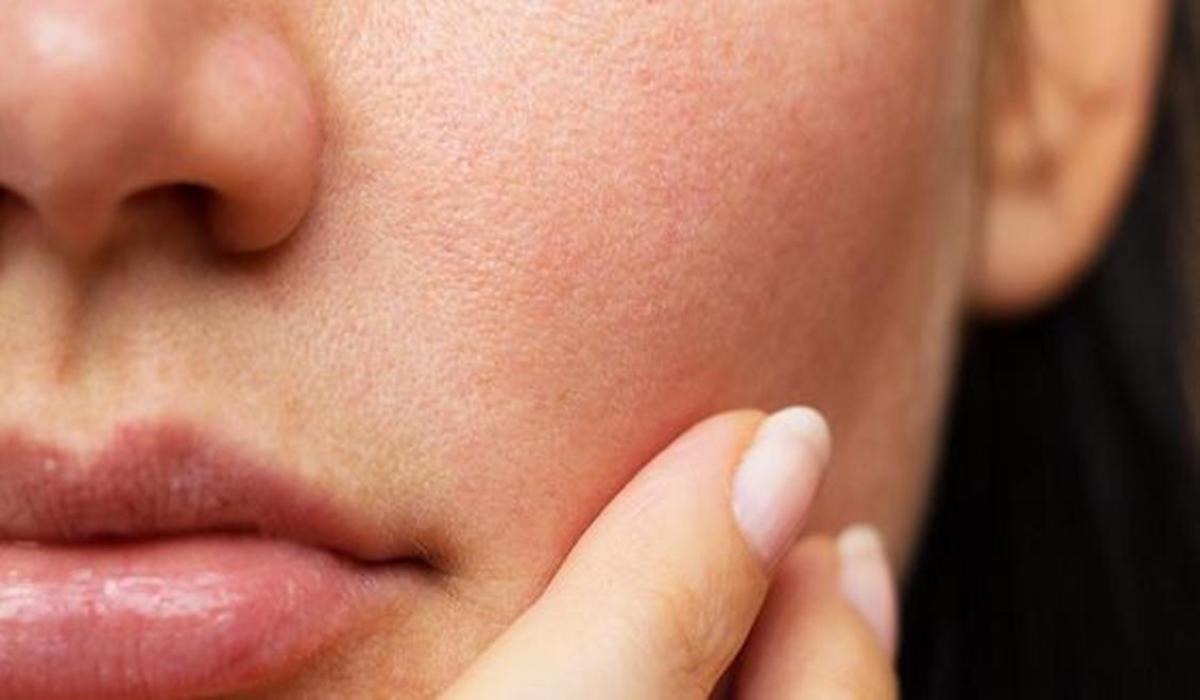 Se débarasser des pores dilatés